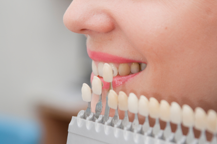 Choice of color of a dental artificial limb. The woman on reception at the dentist. Close-up